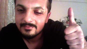 Nyomoznak az arabnak nézett, és emiatt lefejelt cigány újságíró ügyében