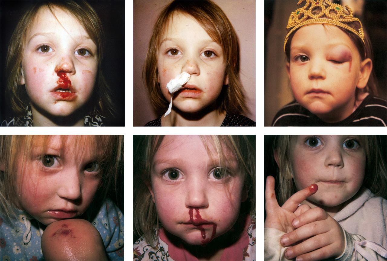 Az én családom: Akárhányszor a fotós gyermekei játék közben megsérültek, Erik Kessels képet készített róluk. Egy, a Mai Manó Házban tartott előadásán elmondta, a családi fotózás valójában propaganda, csak a legszebb pillanatokat örökítjük meg, a valóságot pedig megtartjuk magunknak.