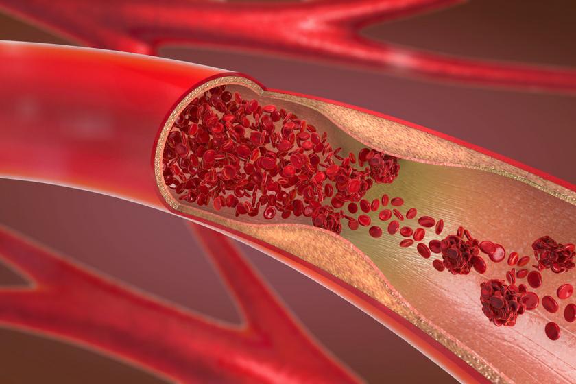 véralvadásgátló