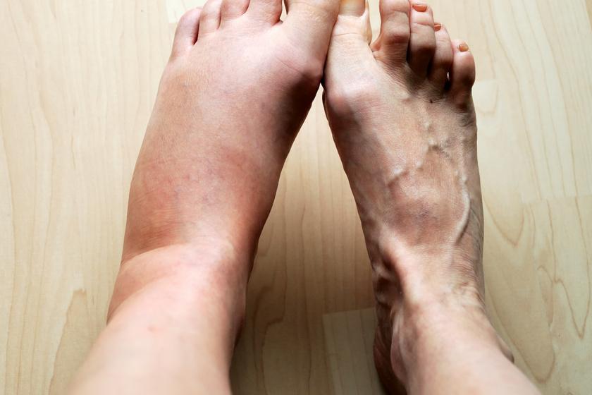 méhcsípés miatt bedagadt láb