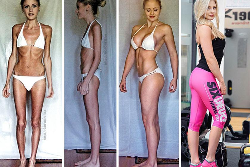 A 23 éves Linn Strömberg 400 kalóriát fogyasztott naponta, amitől életveszélyes állapotba került. Szívrohama is volt, mielőtt elkezdett volna izmot építeni. Most már látszik, hogy újra egészséges.