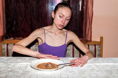 Anorexia előtte utána