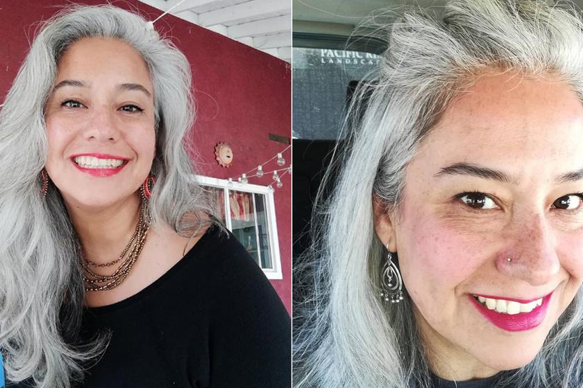 7 évesen kezdett őszülni, évtizedekig festékkel rejtegette a haját - Ma büszkén mutatja meg természetes tincseit