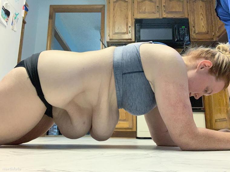 Nemcsak esztétikailag nem túl szép látvány, szexuális életét is negatívan befolyásolja, rengeteg felesleges bőre miatt nem tudja élvezni a szexet
