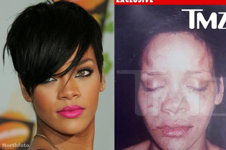 Rihanna a verése után