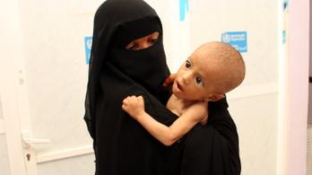 Minden órában három csecsemő hal meg Jemenben, az ENSZ forrásai viszont kiapadtak