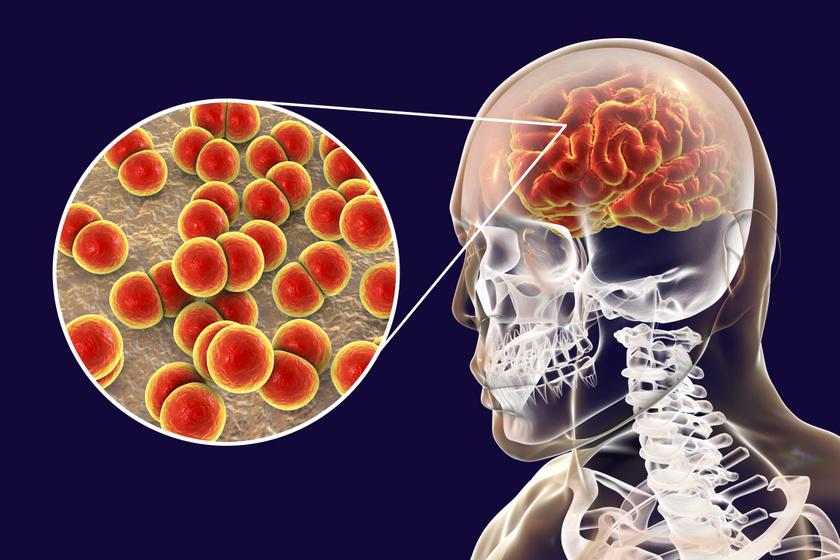 Maradandó károsodást okozhat: mit kell tudni a meningitiszről?