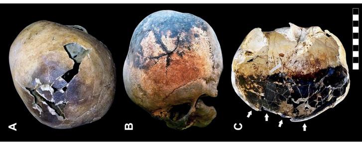 Idős korú felnőtt férfi komponyája (A), csillag alakban törött koponya, több repedéssel, amelyek egy közös pontból indulnak (B), felnőtt férfi felrobbant koponyája (C)