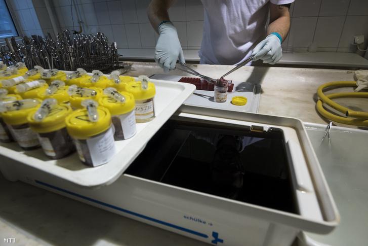Vaddisznóból vett mintát készít elő virológiai vizsgálatra egy laboráns a Nemzeti Élelmiszerlánc-biztonsági Hivatal Állat-Egészségügyi Diagnosztikai Igazgatóságán 2018. május 17-én.