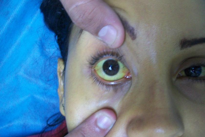 A májbetegeknél jellemző nemcsak a bőr, de a szemfehérje sárgasága is. Ezt a vérben található bilirubin okozza, melynek mennyisége leggyakrabban akkor nőhet meg ilyen látványos szinten, hogyha a máj begyullad, megsérül vagy megfertőződik.
