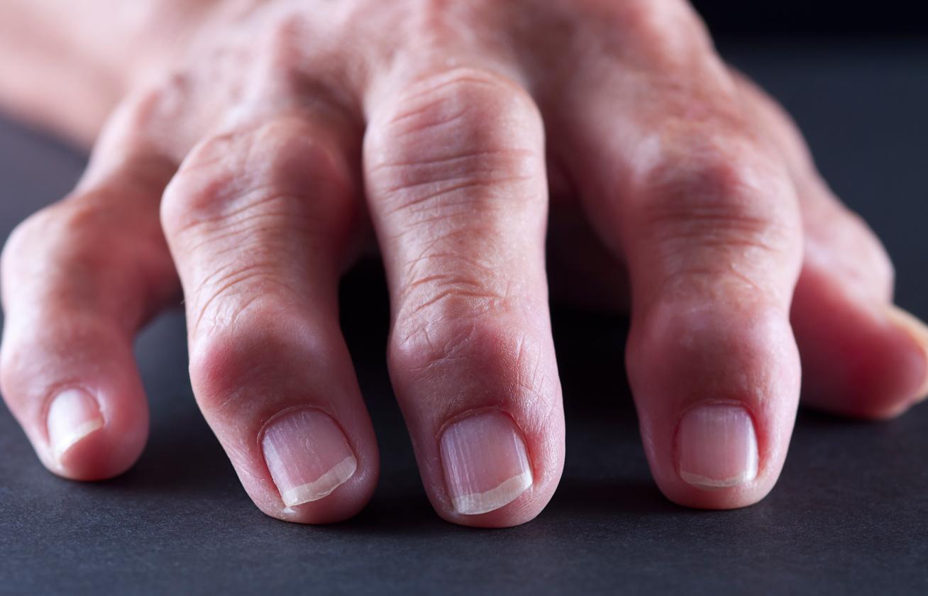 rheumatoid arthritis 1