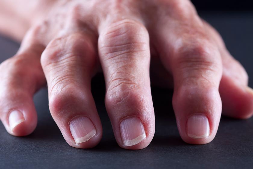 Honnan ismerhető fel a rheumatoid arthritis? Nem csak az ízületeket veszélyezteti