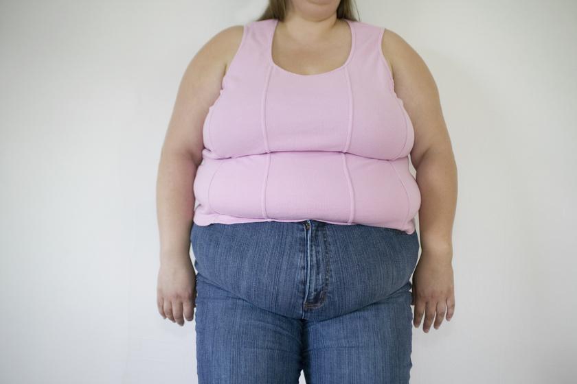 kövér nő teste