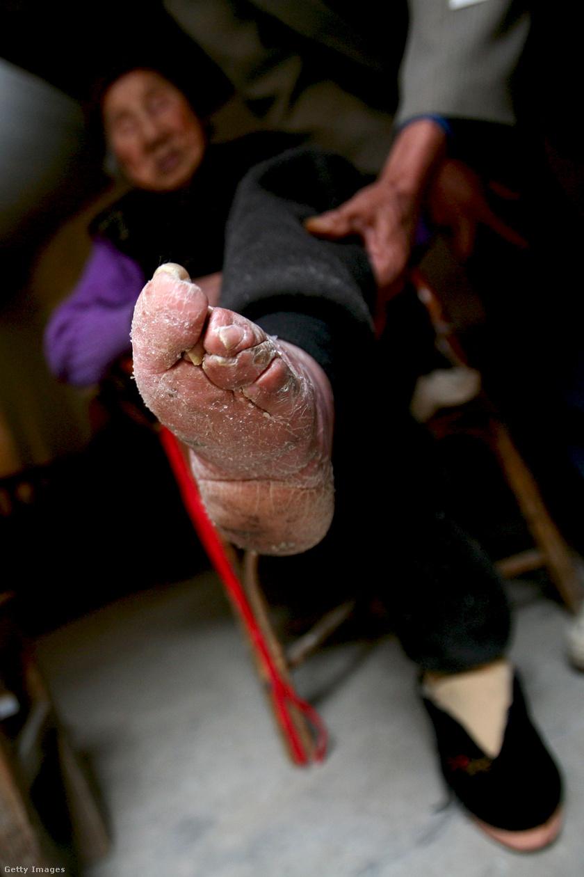 A 82 éves Fu Jifen szalagoktól megszabadított lábát mutatja. A felvétel 2007-ben készült a Yunnan tartománybeli Liuyi faluban, amint táncelőadásra készül.