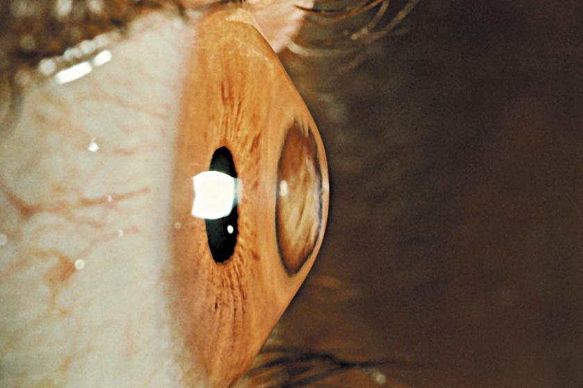Így változik meg a szem alakja.