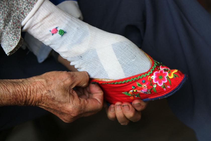 A kislányok lábfejét összetörték, amíg 7,5 centisre nem csonkították: a kínai lábelkötés története
