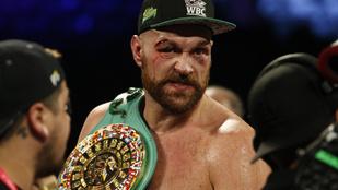 A hatalmas ütéstől a fél szemére nem látott, mégis nyert a vérző fejű bokszoló