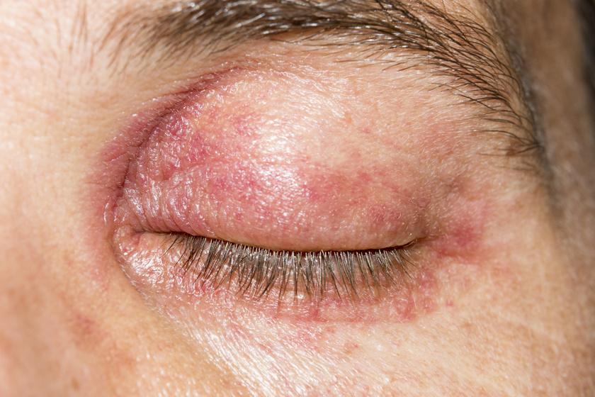 A szem körüli viszkető kiütések vagy zavaró, hámló bőr mögött több allergia is meghúzódhat. A tüneteket kiválthatja pollenallergia vagy valamilyen irritáló anyag, többek között smink, naptej, parfüm, napszemüveg, szemcsepp, műszempilla és kontaktlencse is.