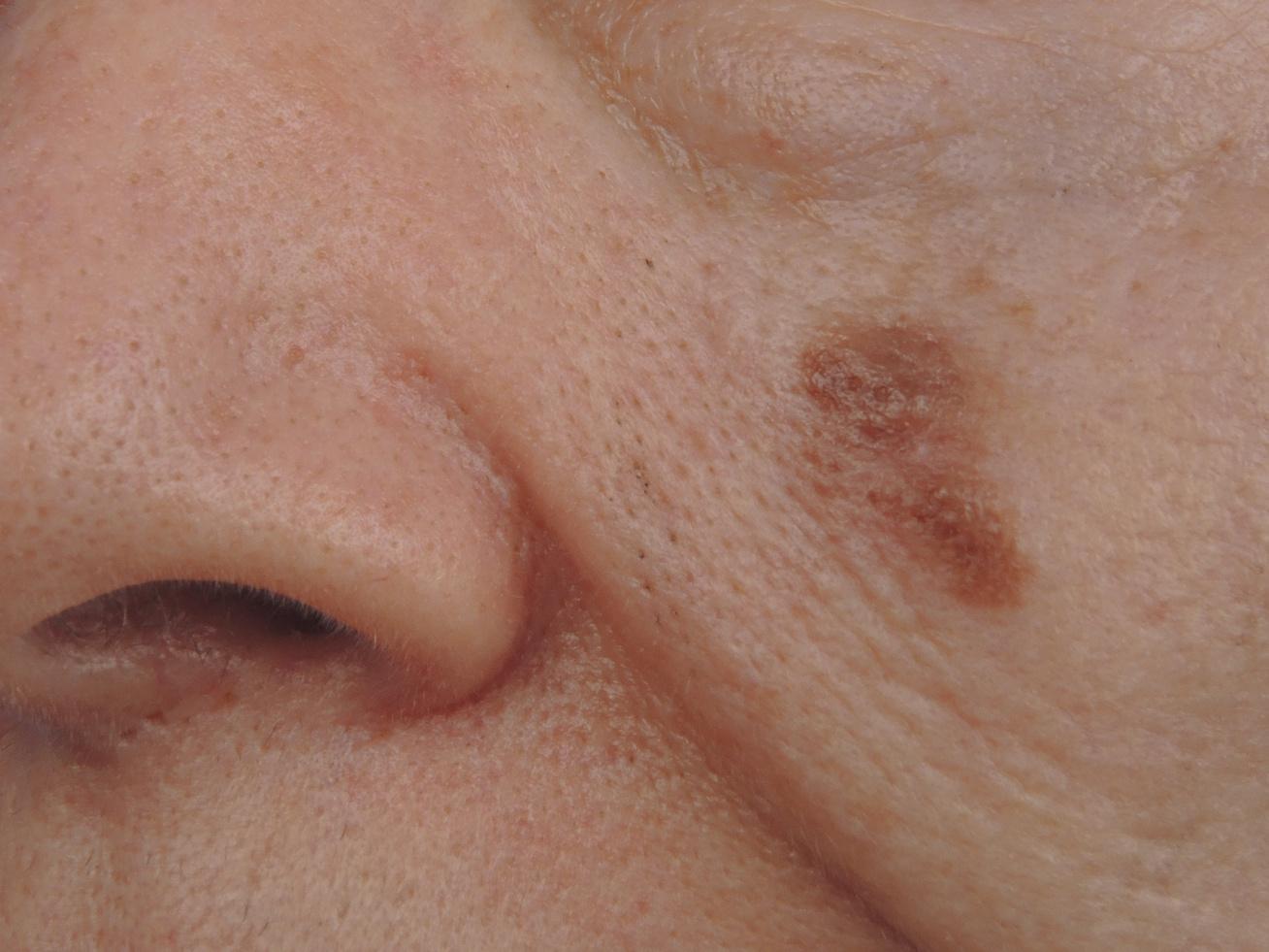 bőrrák, melanoma