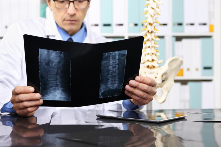 gerincműtét