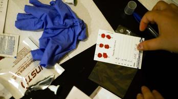 Ingyenes hepatitis C-szűrés lesz országszerte