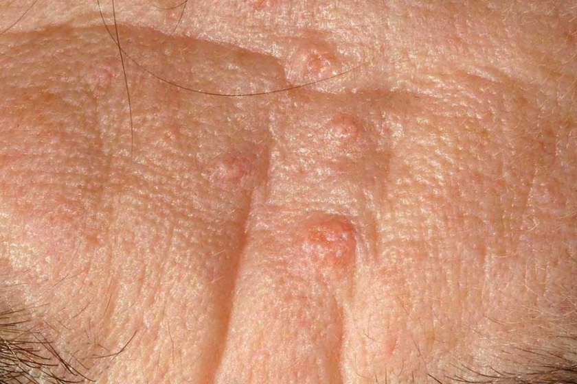 sebaceous-hyperplasia2