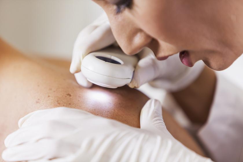 bőrvizsgálat, bőrdaganat