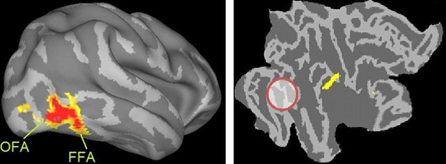 Az fMRI-s kísérletben azarcfeldolgozás korai, perceptuális szakaszában az OFA-ban és FFA-ban kontroll személyeknél az arcképekre magasabb aktivitást láthatunk (bal oldali ábrán a piros folt), mint zajosított képeknél. Ugyanez a mintázat a 3 arcvak kísérleti személynél nincs meg (jobb).