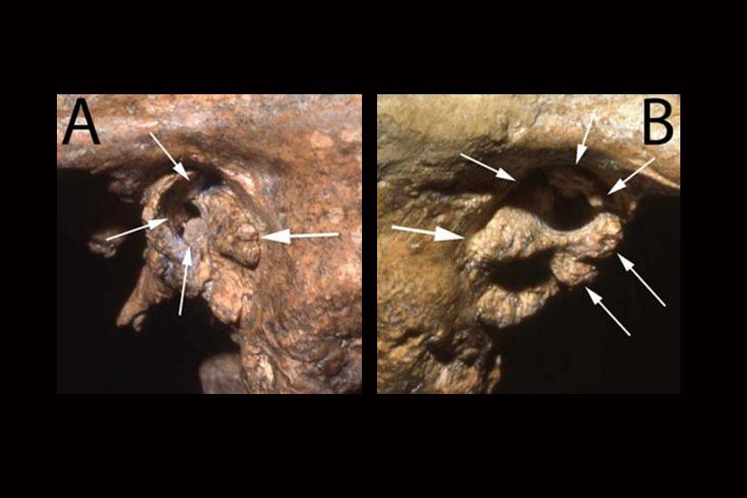 A szakértők nyilakkal jelölték a ma is látható csontos kinövéseket, melyek a Neander-völgyi siketségét okozták.