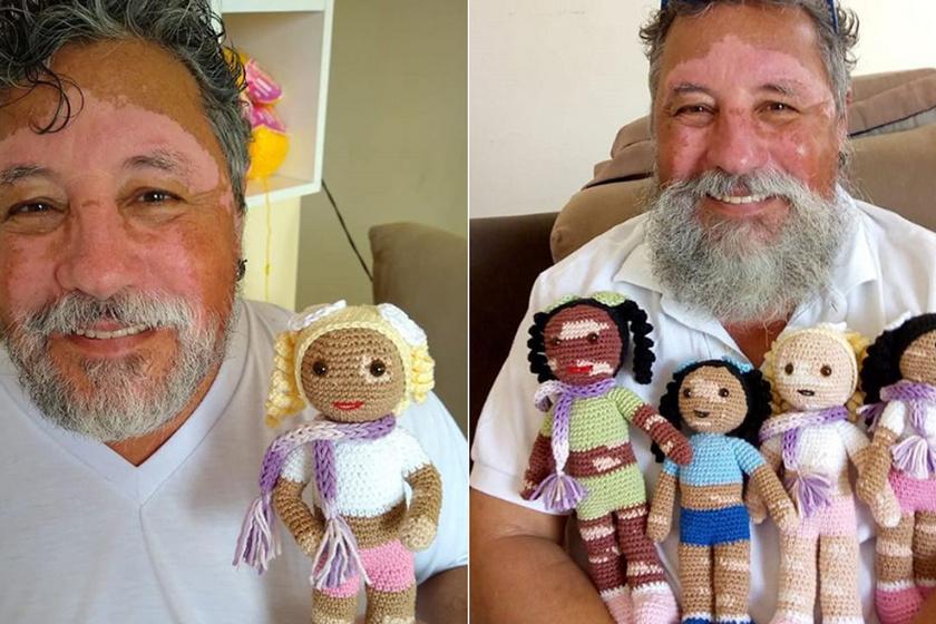 Olyan babákat készít a nagypapa, amilyeneket máshol nem kapni: vitiligós játékaival segít a gyerekeknek