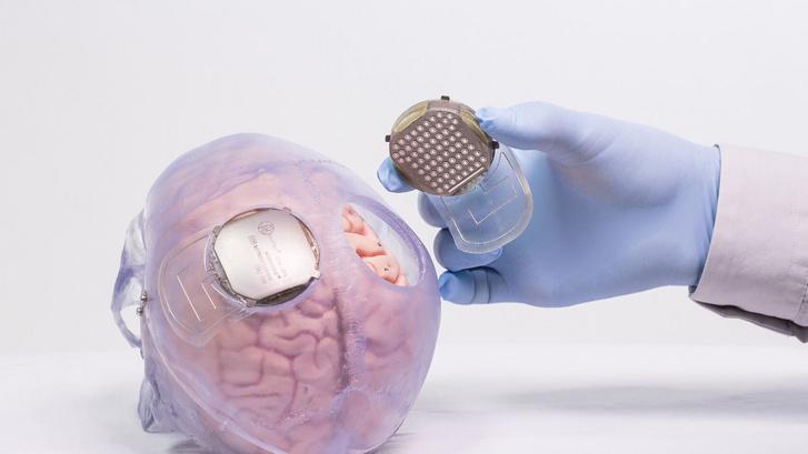 A francia kutatók által kifejlesztett implantátum