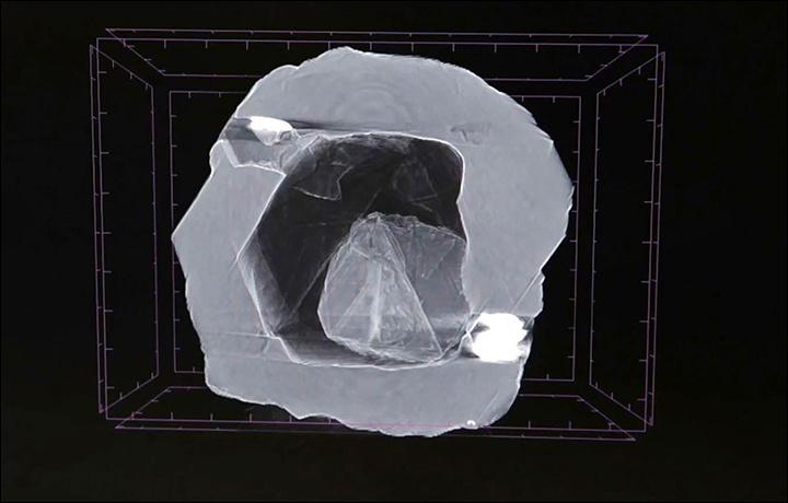 Agyémántröntgenfelvétele