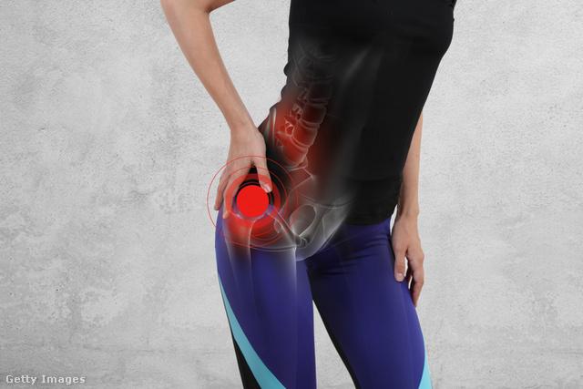 hogyan kell kezelni a csípőízület coxitist