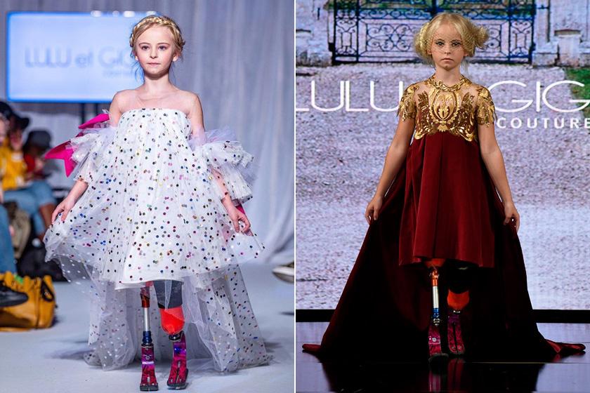 A 9 éves amputált lábú modell a divathetek egyik legnagyobb sztárja: bebizonyította, nincs lehetetlen