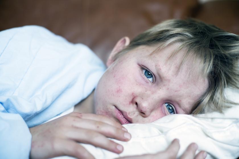 Az oltásellenesek vesszőparipája miatt tombolhat a kanyaró - A kutatók cáfolata az autizmusvádakra