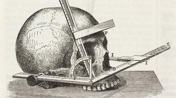 Az emberi koponya az aranymetszés szabályát követi