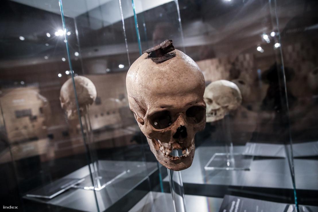 Trepanált koponya az Attila örökösei kiállításról