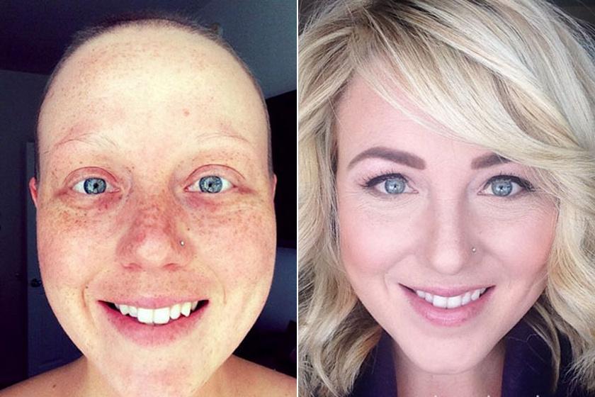 """""""Négy műtét, 55 kemoterápia, 28 sugárkezelés és egy győzelem"""" - írta fotója alá a 35 éves nő, aki évek óta tünetmentes."""