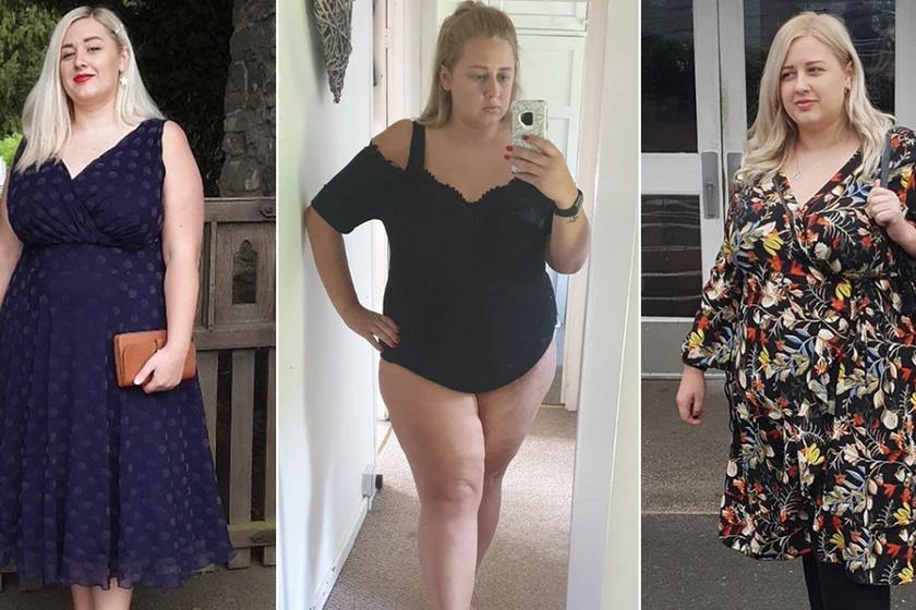 Bántották a súlya miatt, most tízezreket inspirál: betegsége miatt hízott 100 kilóra