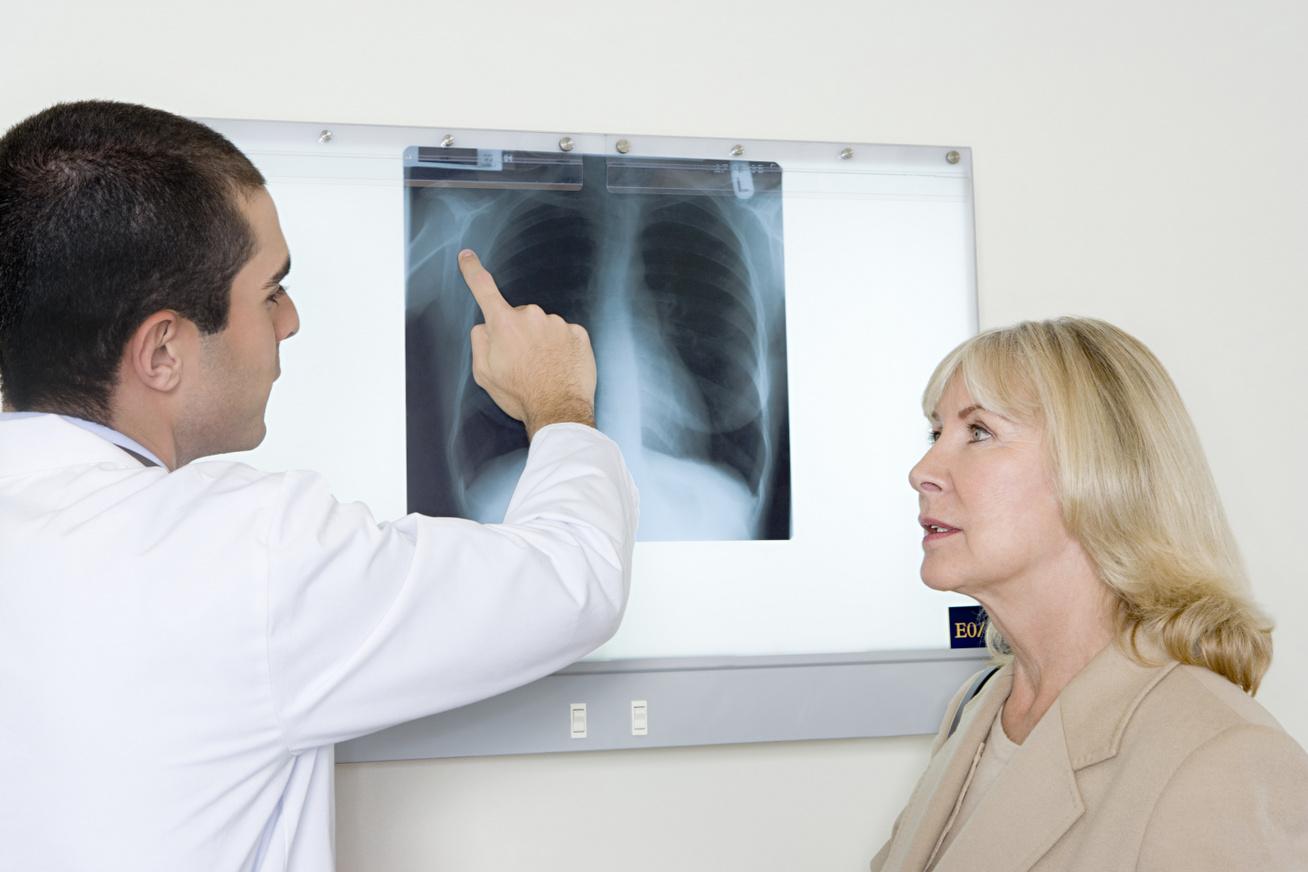 tüdő röntgen