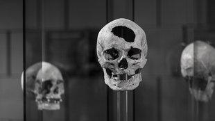 Miért lékelték a koponyájukat őseink?