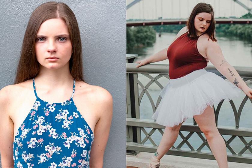 Éveken át éheztette magát az egykor anorexiás balerina: ma büszkén mutatja meg telt idomait