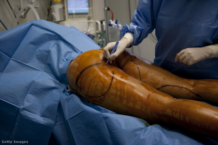 Képünk illusztráció, legális és szakszerű plasztikai sebészeti beavatkozást ábrázol