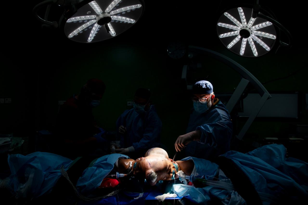 Az altatás bangladesi orvosok közreműködésével indul hajnalban, dr. Csapody Marcell intenzív terápiás orvos vezetésével. A feladat nem egyszerű a nyaktartásuk miatt, hiszen a légútjaik sem teljesen egyenesek, ezért az intubáció (a légutak eszközös biztosítása) már önmagában is bonyolult művelet. Mivel a gyerekeket a műtét közben a gerincoszlopuk tengelye körül forgatják, azt is meg kell oldani, hogy a rengeteg cső, ami a lélegeztetéshez, altatáshoz, gyógyszerek bejuttatásához, monitorozásához kell, ne gabalyodjon össze. A következő feladat a műtéti terület kialakítása. A lányok haját leborotválják, a fejüket lemossák alkoholos fertőtlenítő oldattal. Azért, hogy ez az oldat ne folyhasson a hallójáratukba, dr. Fekete Attila szilikonos gézzel dugja be a fülüket. A képen jól láthatóak a szövettágítók a fejükön elöl és hátul is, és valamennyire látszik a berajzolt metszésvonal (szétválasztási vonal) tervezett helye is. A műtétet a magyar plasztikai sebészeti stáb kezdi és fejezi be. Ahhoz, hogy megkezdődjön a szétválasztás, el kell jutni a csupasz koponyacsontig. Kikerülnek a bőr alól a speciális szövettágítók, és mint egy gondosan megtervezett szabásmintán, a több mint fél év alatt Magyarországon növesztett hajas fejbőrt a két gyermek között szigorúan a tervek szerint elosztják. Itt sincs helye tévedésnek, a fejtetőkön a szétválasztott bőrnek pontosan kell illeszkednie, sehol nem lehet sem több, sem kevesebb belőle.