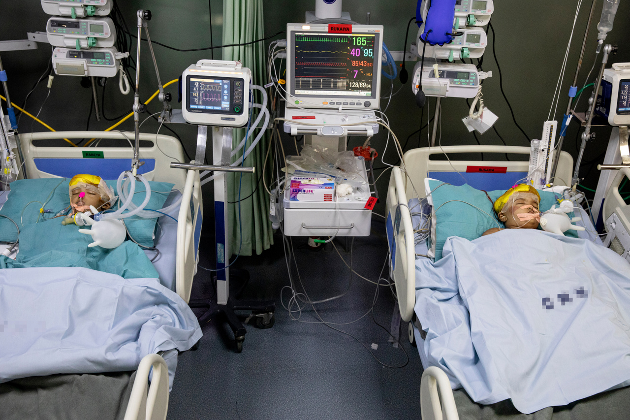 The twins laying in separate beds at the children's ICU after the surgery. They still had to wait though to emerge from anaesthesia as they were still under intense medical observation. The inflated latex gloves serve as improvised support for the respiratory tubes.