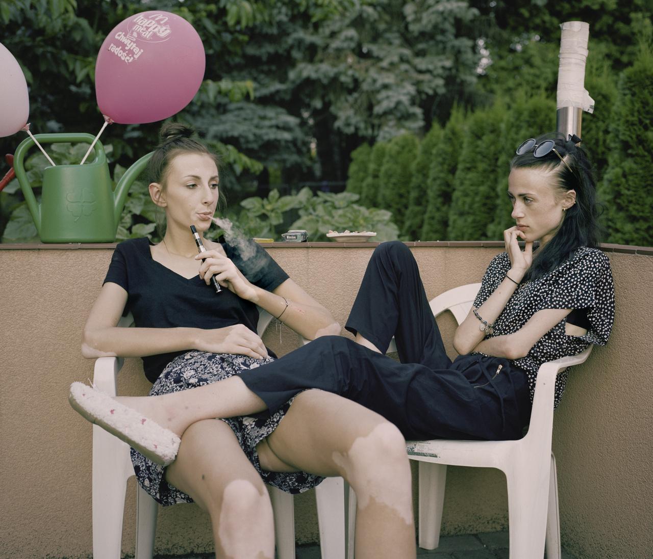 A bulímiás Karolina és az anorexiás Kaia rögtön az első, a Napos házban töltött napjukon összebarátkoztak. Egyikük sem volt kezdő: mindketten megjártak azelőtt már kórházat az evészavarukkal. Rejtély, hogy került vajon a Happy Meal feliratos lufi a hátuk mögötti zöld kannába: egy mcdonalds-os ebédnél kevés riasztóbb dolgot lehet elképzelni egy anorexiás számára. A cigaretta viszont annál inkább tipikus része a mindennapoknak. Az efféle helyeken nem egyedi, hogy megtűrik a dohányzást, még akkor is, ha a betegek hivatalosan nem elég idősek hozzá, legfeljebb szülői engedélyt kell bemutatni. A gyógyításon dolgozók szempontjából talán az szól mellette, hogy a cigaretta enyhíti a rettenetes szorongást, amit ezek a lányok - főleg evés után - átélnek. A lányok szempontja nyilvánvaló: elnyomja az éhséget, segít megakadályozni a hízást.