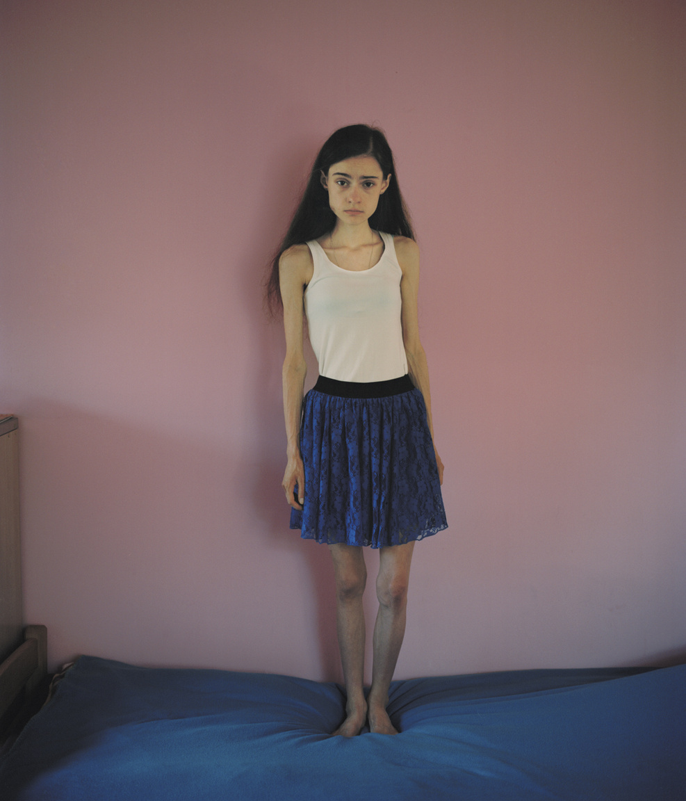 """""""Fogalmam sem volt róla, hogy photoshoppolják a modelleket a magazinokban, vagy hogy a hollywoodi emberek gyakran plasztikai műtéten estek át. Most már rájöttem, hogy azok, akikre hasonlítani akartam, nem is valóságosak"""" - mondta a 16 éves Ania a fotósnak, aki több projektjében is foglalkozott nőkkel és az ő szépséghez, testükhöz fűződő viszonyukkal. A szépség, nőiesség sok érintett lány számára fontos kérdés, ugyanakkor félreértés és veszélyes leegyszerűsítés az őrült elvárásokat közvetítő divatipar számlájára írni az evészavarokat, amely különféle formáiban ma már a harmadik leggyakoribb krónikus betegség a tizenévesek között. Ha már egyszerűsítünk: több igazság van abban, ha azt mondjuk, az evészavarok nem a vékonyságról szólnak, hanem a kontrollról. Amikor egy kamasz lába alól kicsúszik a talaj, óriásira nőhet a szemében annak az életterületnek a jelentősége, ahol végre úgy érezheti: nála van az irányítás, az történik, amit akar, kiszámíthatóak a következmények. Az evés, fogyás, hízás ilyen: ha valaki nem eszik, fogyni fog, és a mérleg dekáról dekára hűségesen szállítja a visszajelzést, a megerősítést, a sikerélményt. Marie Hald is azzal a felfedezéssel hagyta ott végül a Napos házat, hogy az anorexiának és a bulímiának valójában kevés köze van a testhez, és sokkal több a kontrollhoz és a perfekcionizmushoz."""