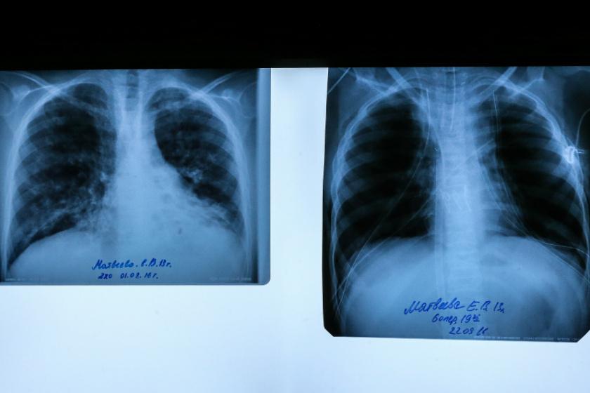 Sikeres tüdőtranszplantáció: bal oldalon az előtte, jobb oldalon az utána készült kép.
