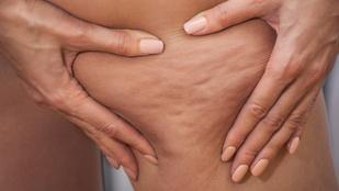 Fölül normál, alul vastag – mit tehetsz a zsírödémás elhízás ellen?