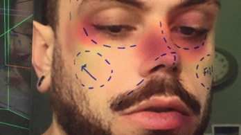 Letiltja az Instagram a plasztikai műtétes filtereket
